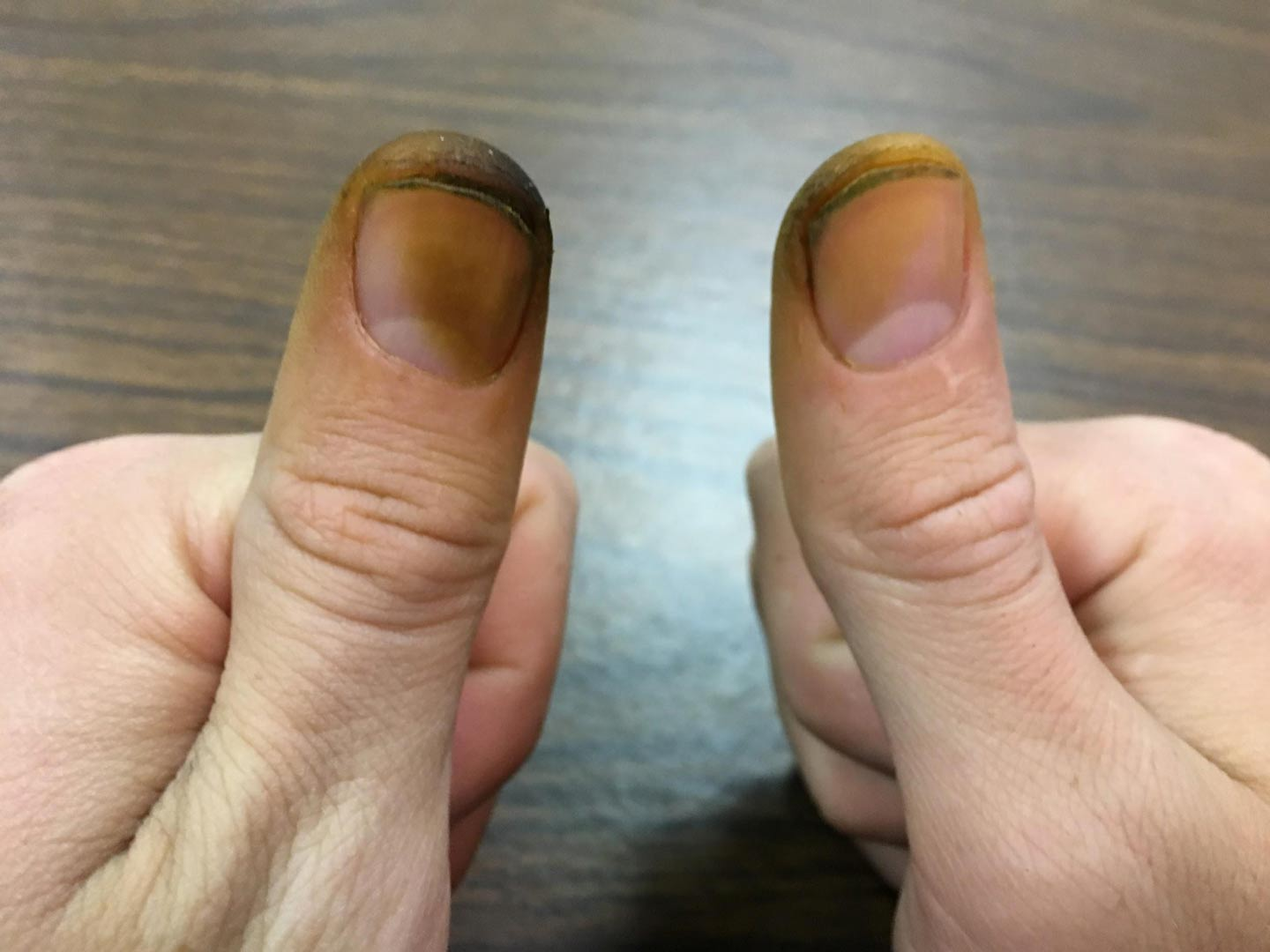 How To Remove Black Walnut Stains From Skin And Clothes